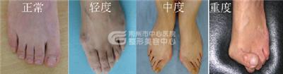 微创祛除大脚骨手术怎么样?