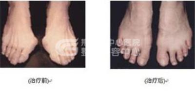 有哪几种方法矫正大脚骨?