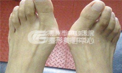 大脚骨治疗祛大脚骨的方法有哪些?