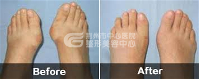 大脚骨是不是女性高发的遗传病?