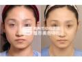荆州市中心医院整形美容中心专家解析面部吸脂步骤