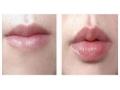 荆州唇珠成型手术是怎么做的?