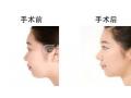 鼻小柱延长 让你的鼻子挺起来