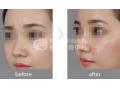 鼻小柱延长术注意事项有哪些