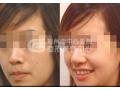 鼻小柱延长术的特点是什么?