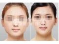瘦脸磨骨恢复期要多长