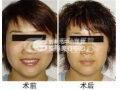 荆州哪里打瘦脸针便宜?