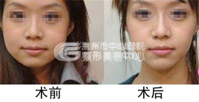 溶脂瘦脸针瘦脸的原理