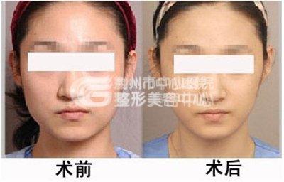 打瘦脸针的副作用有什么?