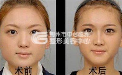 瘦脸针注射轻松瘦脸的最佳选择