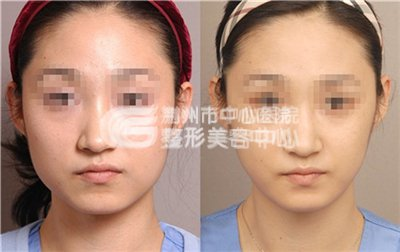 瘦脸针副作用是否存在