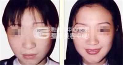 荆州瘦脸针多少钱