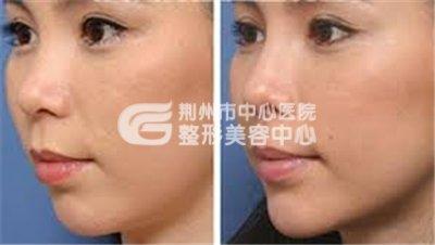 荆州国产瘦脸针与进口瘦脸针