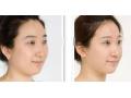 溶脂针,快速瘦脸的微创方法!