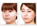 怎么区分botox瘦脸针和溶脂针