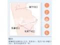 荆州隆胸失败修复术后应该如何护理