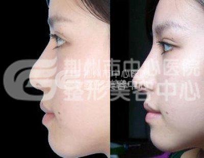 硅胶隆鼻假体取出要多少钱?