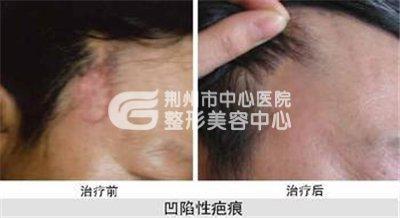 荆州疤痕修复方法有哪些?