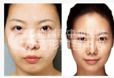 假体隆鼻材料取出要多少钱