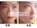 荆州手术疤痕修复价格