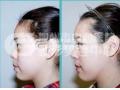 假体隆鼻材料取出后需要注意什么
