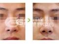 假体隆鼻取出最好什么时候?