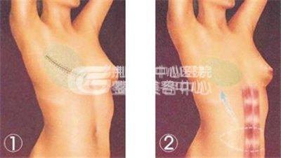 """乳房再造手术还你""""挺挺""""玉立的胸部"""