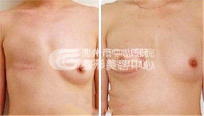 乳房再造需要注意事项有什么呢?