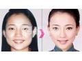 荆州下颌角整形手术大概多少钱?