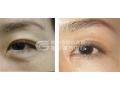 做切眉术安全吗?