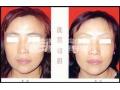 做切眉术有哪些作用?