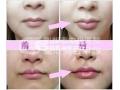 常见的注射丰唇方法,你造吗?