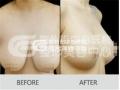 荆州乳房下垂矫正美容医院,荆州整形美容中心整形新标杆!