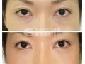 荆州眼袋吸脂手术