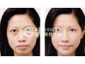怎么快速有效去除眼袋?