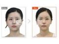祛眼袋手术适合哪些人做?