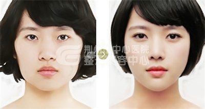 想瘦脸 下颌角磨削术瘦脸一步到位