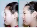 假体隆鼻材料取出后需要注意什么?