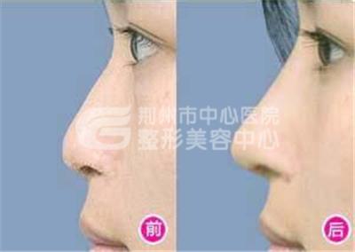 荆州假体隆鼻效果可以保持多久?