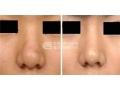 荆州鼻头缩小手术恢复期要多久