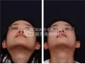 鼻翼与鼻头缩小的整形方法