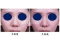 荆州鼻头缩小方法一般有哪些?
