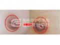 不同程度的乳头内陷的矫正方法
