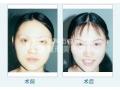 荆州BOTOX瘦脸针价格的影响因素有哪些?