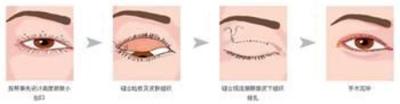 荆州激光祛眼袋多少钱,你了解吗?