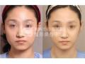 荆州botox瘦脸针价格是怎样的