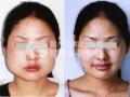 荆州注射botox瘦脸针的费用