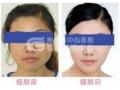 荆州注射botox瘦脸针要注意哪些?