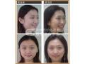 在荆州做祛脂肪垫手术有哪些注意事项