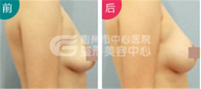荆州乳房下垂应该怎么修复?